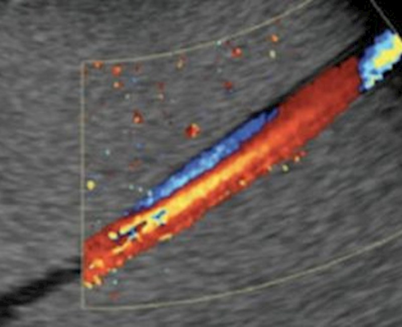 3D ultrasound shows promise in blood flow measurement