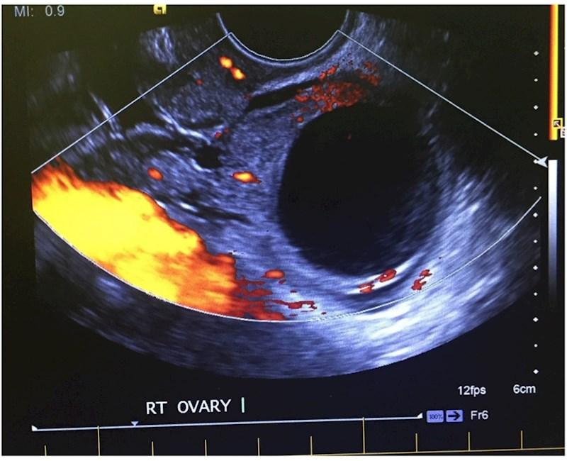 Pelvic ultrasounds referred from the emergency department: agreement between sonographer findings and radiologist reports
